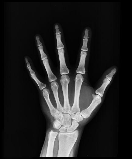 Plus l'image est blanche, plus l'os est dense