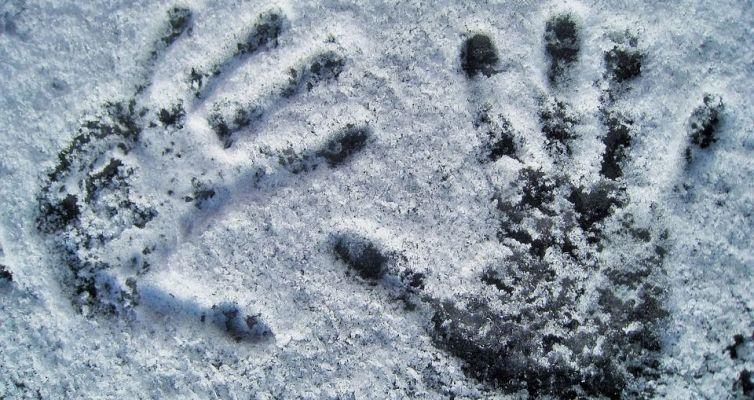 Si vous avez tout le temps les mains froides, vous souffrez peut-être d'un syndrome de Raynaud ?