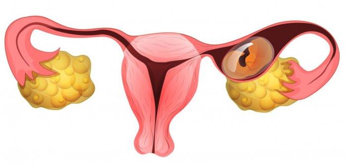 درمان کیست تخمدان با عسل