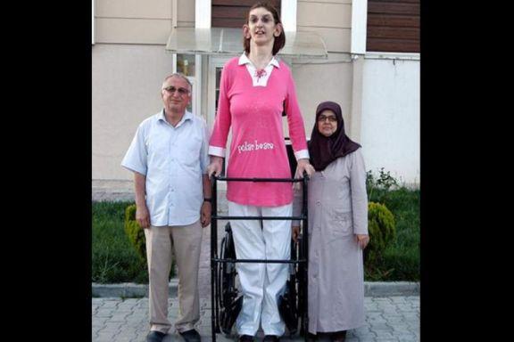 La adolescente más alta del mundo y su difícil vida