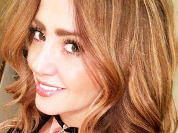 Andrea Legarreta anunció que padece púrpura