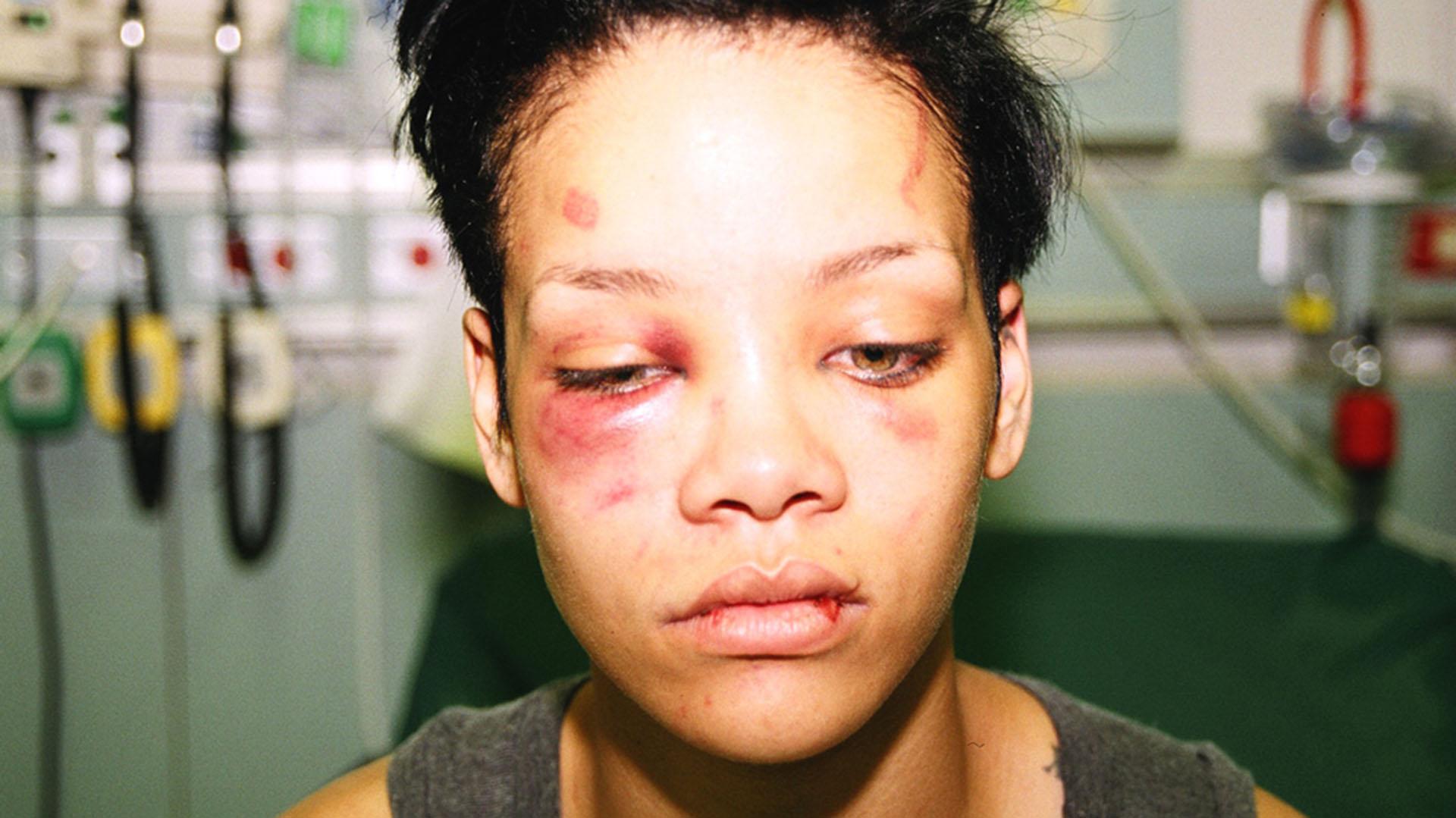 Captan a Rihanna llena de moretones en la cara
