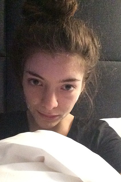 Lorde summed up the #struggle of having acne as a teen, with this amazing pic that she captioned,