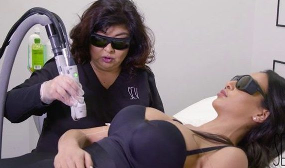 Sev Laser Hair Removal Arms