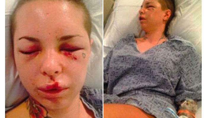 Everything About Christy Mack's Horrifying Domestic Violence Incident