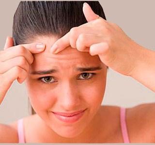cum-tratezi-acnea