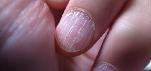 tratament-boli-ale-unghiilor