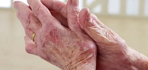 Artroza. Remedii naturiste care intarzie evolutia acestei afectiuni si care amelioreaza durerile