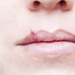 Herpesul bucal. Ce este, de ce apare si cum il tratam