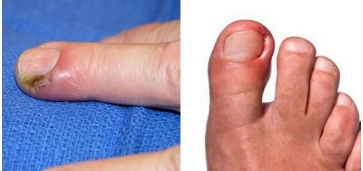 Panaritiu. Cum scapi rapid de infectia de la deget