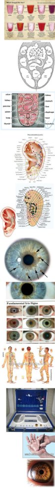 microsisteme in handpoints diagnostic si iridologie medicala