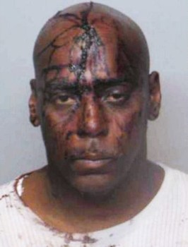Henry Davis, 52, arrested Sept. 20, 2009, in a case of mistaken identity, was beaten by Ferguson PD, then charged with property damage for bleeding on an officer's uniform. Davis insisted this photo be taken at the hospital before he was treated. Later, in court, the officer denied there'd been any blood on his uniform.