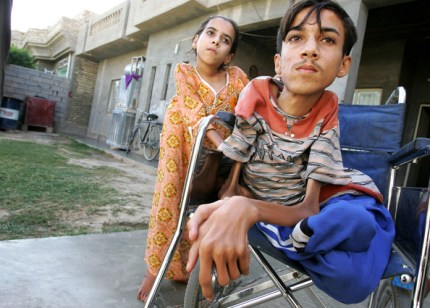 The rate of birth defects in Basra and Fallujah is higher than any the world has ever seen. Anas Hamed and his sister, Inas, of Fallujah, targeted by intensive U.S. bombing raids using depleted uranium and other poisons, are among the victims.