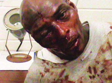 In one of the photos that, despite Georgia prison officials' efforts, found its way to the public, Kelevin Stevenson is shown shortly after he was beaten with hammers by guards on Dec. 31, 2010.