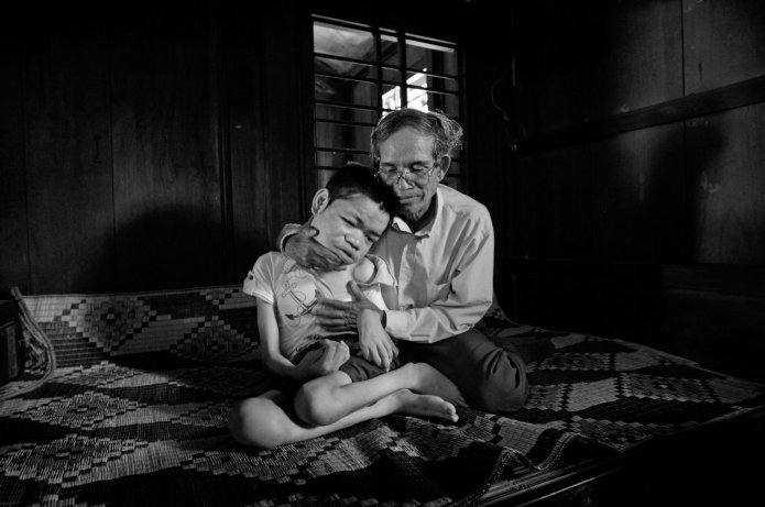 Quynh-Thu-66-sprayed-w-Agent-Orange-in-Vietnam-War-comforts-son-Pha-Quoc-21-2009-by-Kuni-Takahashi, What lessons have we learned from the war in Vietnam?, World News & Views