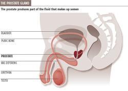 Masturbation Reduces Cancer Risk (4/6)