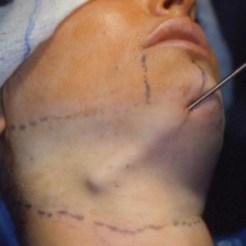 liposuction (3)