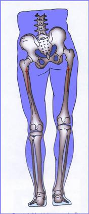 leg length discrepancy surgery adults
