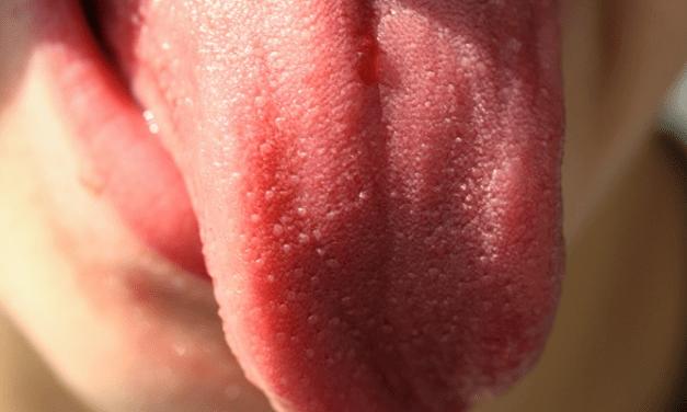 지금 바로 혀를 내밀어보세요 혀 색깔이 말해주는 건강상태