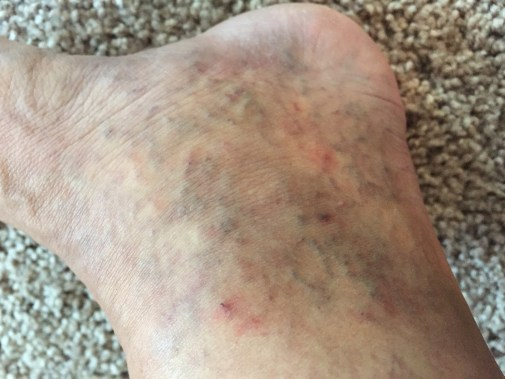 Left Ankle: After the First Treatment