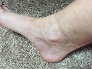 Right ankle three months after three treatments