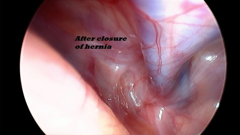 direct hernia after closure