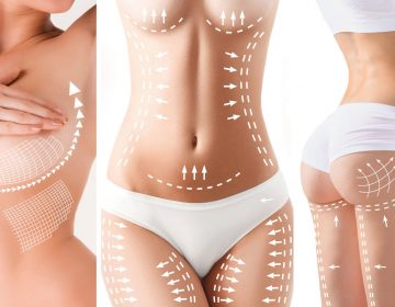 The cellulite removal plan. White markings on young woman body preparing for plastic surgery. Concept of slimming, liposuction, strand lifting