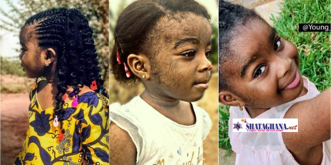 Meet the Beautiful Ghanaian-Nigerian little Girl With Excess Hair – pictures
