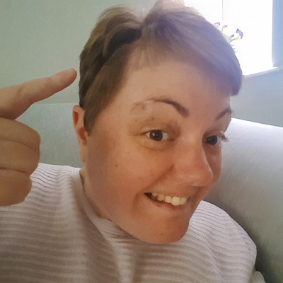 Author pointing at head after getting told tumour was beneign / Life after brain surgery 7 months on / Meningioma / SHE-EATS