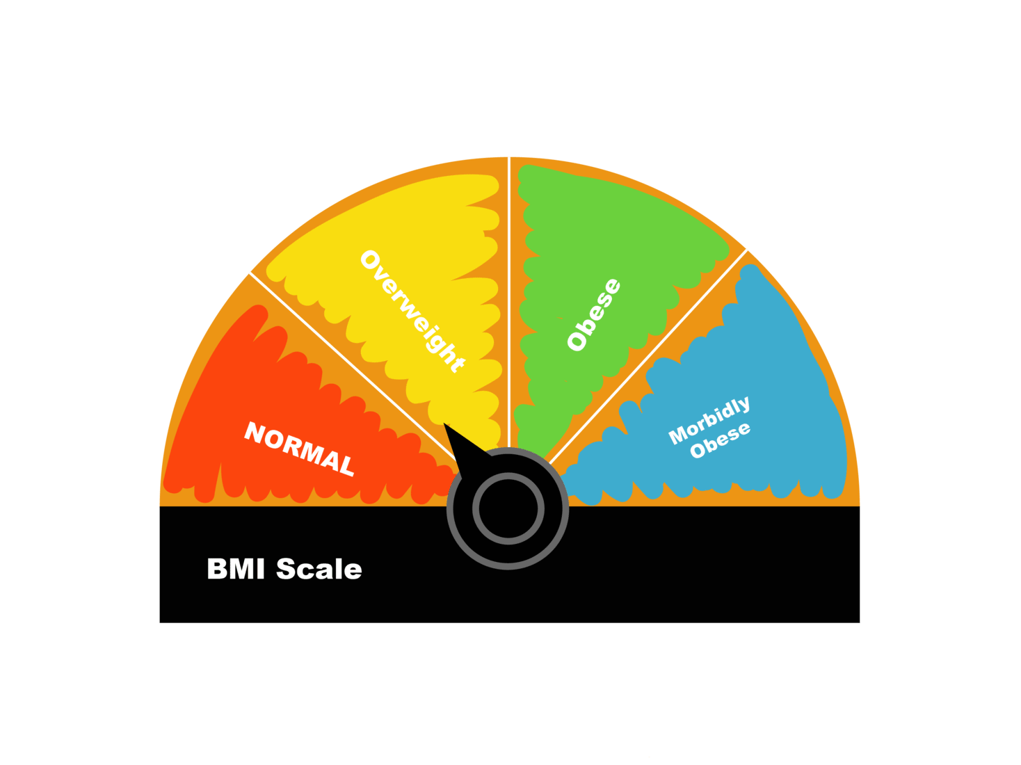 The Body Mass Index Easy To Use But Of Little Use