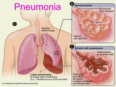 apa-itu-pneumonia-bronkitis-kepada-kanak-kanak