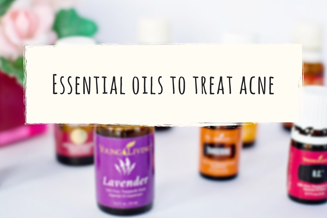 4 Essential oils for your oily and acne prone skin