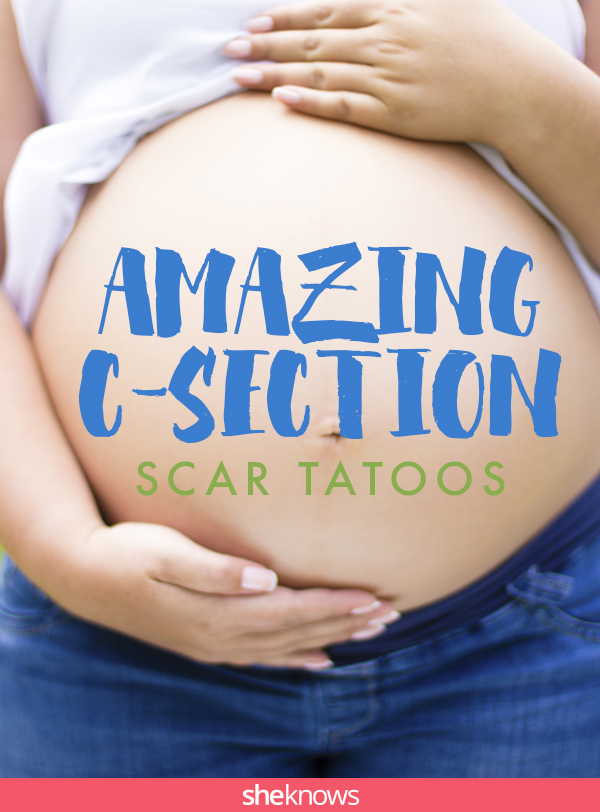 C Section Scar Tattoo Cover Up : section, tattoo, cover, Breathtaking, C-section, Tattoos, SheKnows