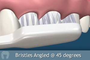 Bristles engaging sulcus
