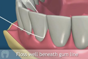 Floss well below gum line