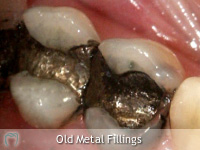 Old Metal Fillings