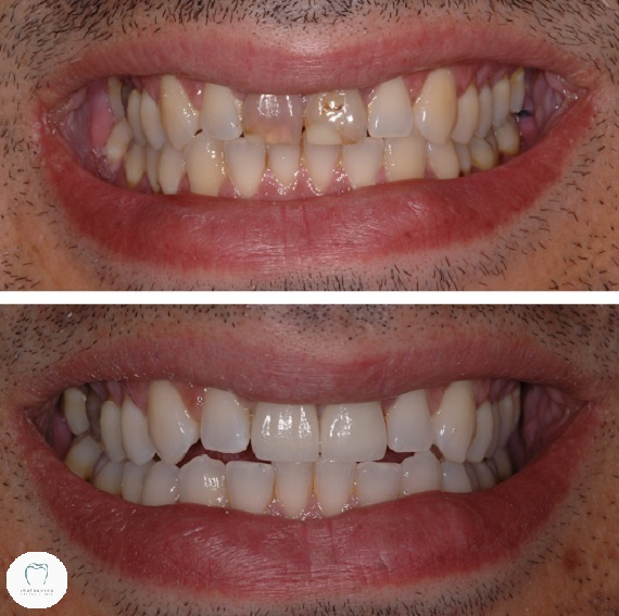 Photo of before and after dental crowns