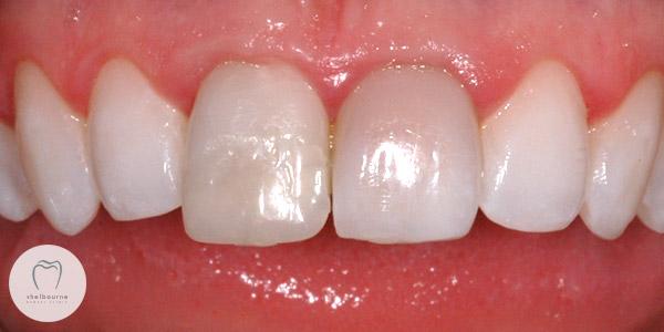Dark Front Teeth
