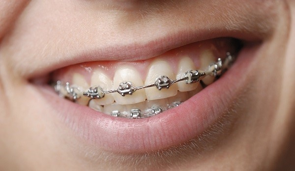 Photo of dental braces