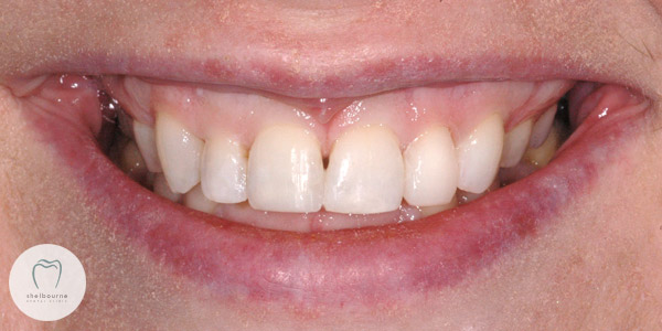 After teeth whitening and cosmetic bonding