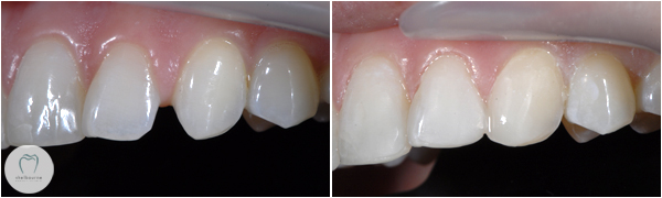 Closing gaps using dental bonding