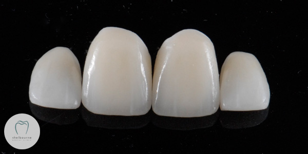New crowns and veneers