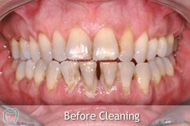 Scale & Polish - Professional Dental Cleaning