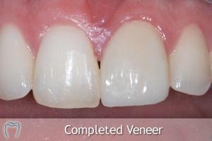 Completed Veneer