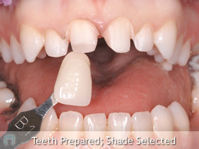 Ceramic Dental Technician Sirona Kndigt