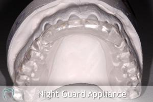 Night Guard Appliance on Model