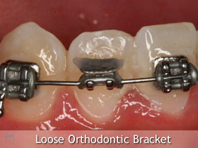 Orthodontic Emergency