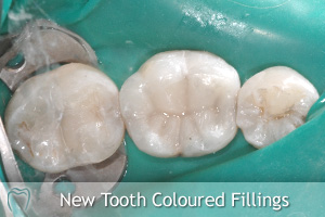 New Tooth Coloured Composite Fillings