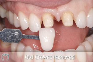 Old Crowns Removed - Shade Selected