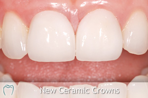 New Ceramic Crowns